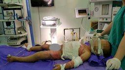 Gia đình bất cẩn, bé trai 2 tuổi bị bỏng nước sôi nặng, bong tróc da khắp người