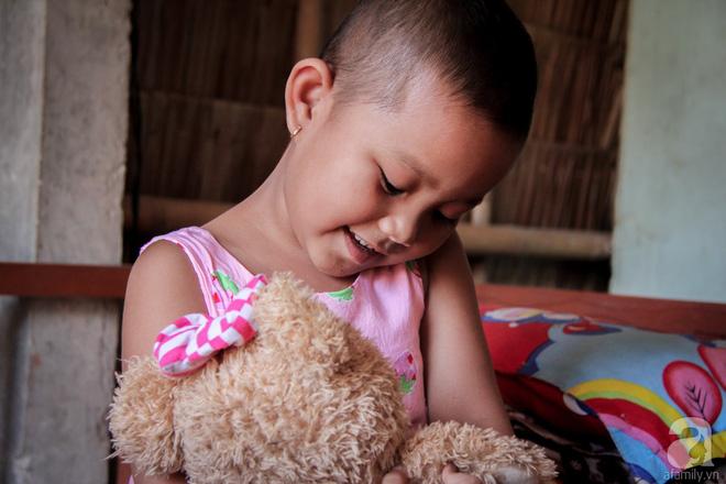 Tâm sự của bé gái 5 tuổi bị u não: Mẹ ơi! Mẹ cứu con đi, con lớn lên đi mần công ty trả tiền cho mẹ - Ảnh 8.