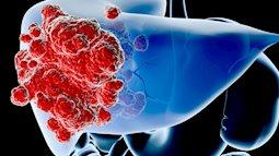 Có 1 bệnh đáng sợ hơn cả HIV, sốt rét, lao... nhưng hay bị chúng ta bỏ qua
