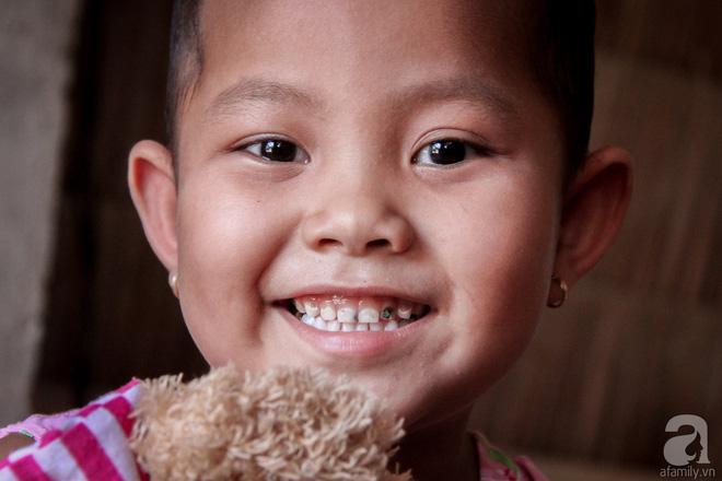 Tâm sự của bé gái 5 tuổi bị u não: Mẹ ơi! Mẹ cứu con đi, con lớn lên đi mần công ty trả tiền cho mẹ - Ảnh 2.
