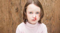Rốt cuộc thì khi chảy máu cam, nên cúi mặt hay ngửa cổ?