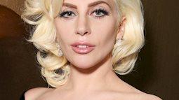 Căn bệnh khiến Lady Gaga phải hủy show diễn toàn thế giới hóa ra rất gần với người Việt
