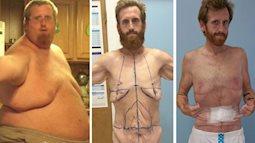 Thừa cân tới mức không thở nổi, người đàn ông này đã phải trải qua 10 cuộc phẫu thuật lấy lại vóc dáng