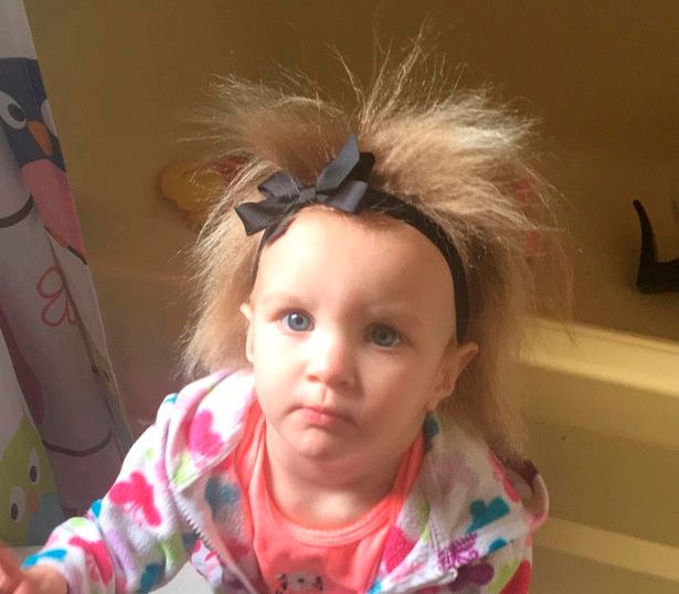 Mái tóc kì lạ của Phoebe