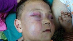 Xót cảnh bé trai 2 tuổi đẻ ra không biết mặt cha, đến khi mẹ lấy chồng thì bị cha dượng đánh đập phải nhập viện cấp cứu