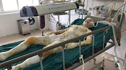 Cô gái bị người yêu tẩm xăng thiêu sống ở Vĩnh Phúc đã qua đời