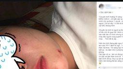 """Nha Trang: Kẻ """"biến thái"""" kề dao vào cổ, dùng roi chích điện ép cô gái quan hệ trong đêm khiến dư luận xôn xao"""