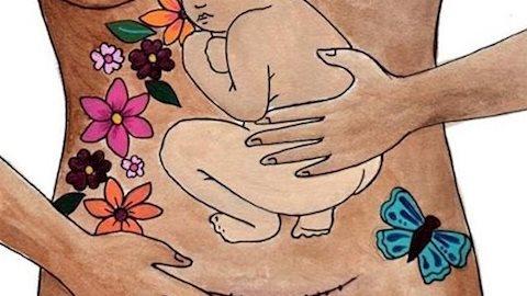 Ngọt ngào và xúc động với bộ ảnh tôn vinh sự hi sinh của những người mẹ sinh mổ