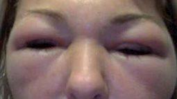 Căng thẳng vụ kiện bác sĩ thẩm mỹ vì khuônmặt biến dạng sau khi tiêm botox.