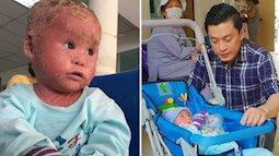 Ca sĩ Lam Trường đến thăm bé Bích - em bé bị vẩy ngứa da trăn trước khi bé nhập viện điều trị