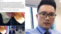 MC bị tố bạo hành, đánh đập em vợ suốt 5 năm có thể bị xử lý thế nào?