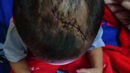 Nghi án bé trai 3 tuổi bị mẹ ruột cùng cha dượng bạo hành ở Bình Dương