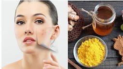 5 loại mặt nạ dưỡng ẩm tự nhiên cho da nhờn và mụn trong mùa hè nóng bức