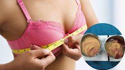 Kinh hoàng: Rút cả lít chất lạ từ ngực của nữ Việt kiều từng nâng ngực ở Thái