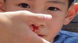 Trẻ có thể tử vong nếu cha mẹ sơ cứu chảy máu cam sai cách