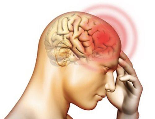 Viêm màng não do vi khuẩn: Căn bệnh nguy hiểm đối với cả nhà