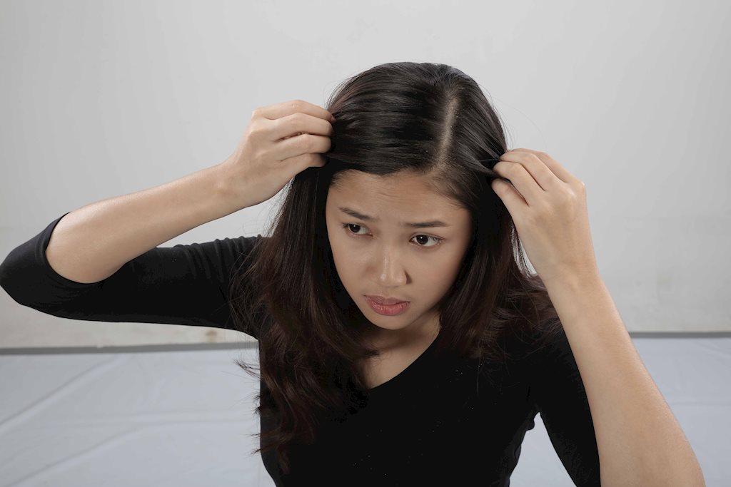 Đi tìm giải pháp điều trị gàu và ngứa da đầu hiệu quả