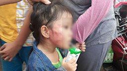 Thêm một vụ bạo hành ở  Sài Gòn: Bé gái 5 tuổi nghi bị bảo mẫu tát sưng má