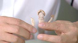 Nấm ma thuật, loại ma tuý cực độc khiến sức khỏe suy kiệt