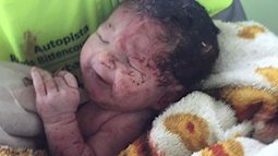 Em bé may mắn sống sót sau khi văng ra khỏi bụng mẹ do  tai nạn giao thông