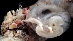Những bức hình quý giá mô phỏng thai nhi phát triển trong bụng mẹ như một mầm sống kì diệu