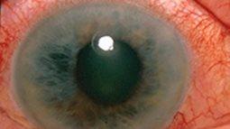 Bạn có biết, bệnh về mắt và bệnh mất trí nhớ có liên quan đến nhau