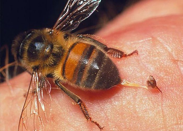 Biện pháp xử lý khi bị ong đốt hình ảnh