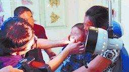 Vật thể lạ trong mũi bé gái khiến cô bé chảy máu cam bất thường