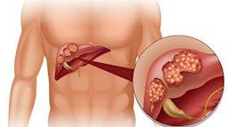 Nguyên nhân dẫn đến ung thư gan do thói quen của đa số giới trẻ hiện nay