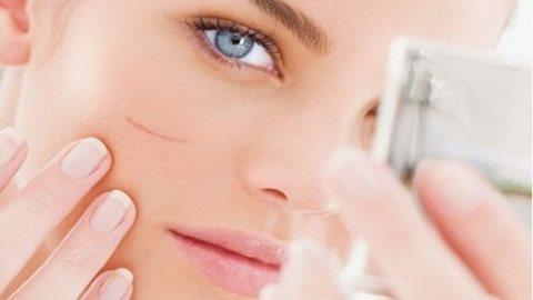 5 cách trị sẹo lồi đơn giản hiệu quả tại nhà cho làn da mịn