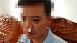 Bất ngờ với nguyên nhân học sinh kéo người vào đánh gãy mũi thầy giáo tại Đắk Lắk