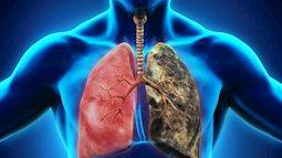 Ung thư phổi do khói bếp