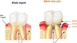 Cảnh báo nguy cơ ung thư từ việc đánh răng sai cách