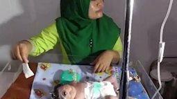 Chồng bị phơi nhiễm thủy ngân, người mẹ  sinh ra con chỉ có một mắt