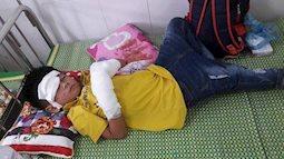 Đang chơi điện thoại phát nổ, cháu bé ở  Nghệ An có nguy cơ hỏng 2 bài tay