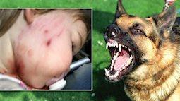 Hướng dẫn cho bé tiếp xúc với vật nuôi an toàn và xử lý khi bị vật nuôi cắn