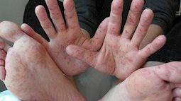 Những dấu hiệu phân biệt tay chân miệng với những bệnh khác