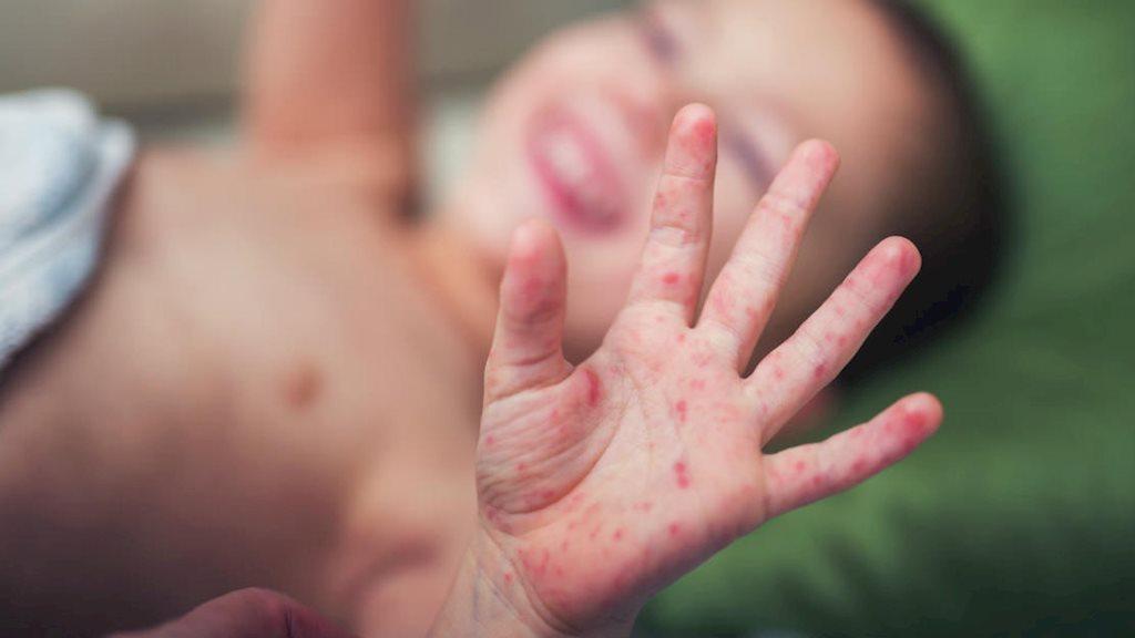 Bác sĩ chỉ cách chăm sóc trẻ bị tay chân miệng tại nhà