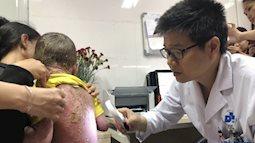 Tự ý đắp lá chữa bệnh cho con khiến bé trai bị vẩy nến ngày càng nặng