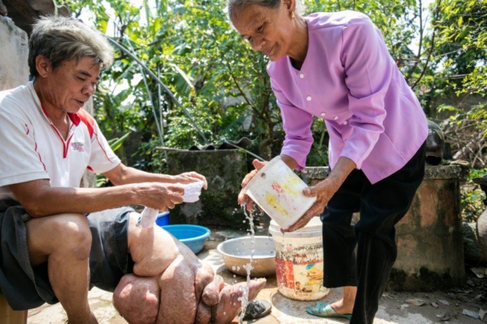 Bệnh giun chỉ bạch huyết đã được loại trừ khỏi Việt Nam