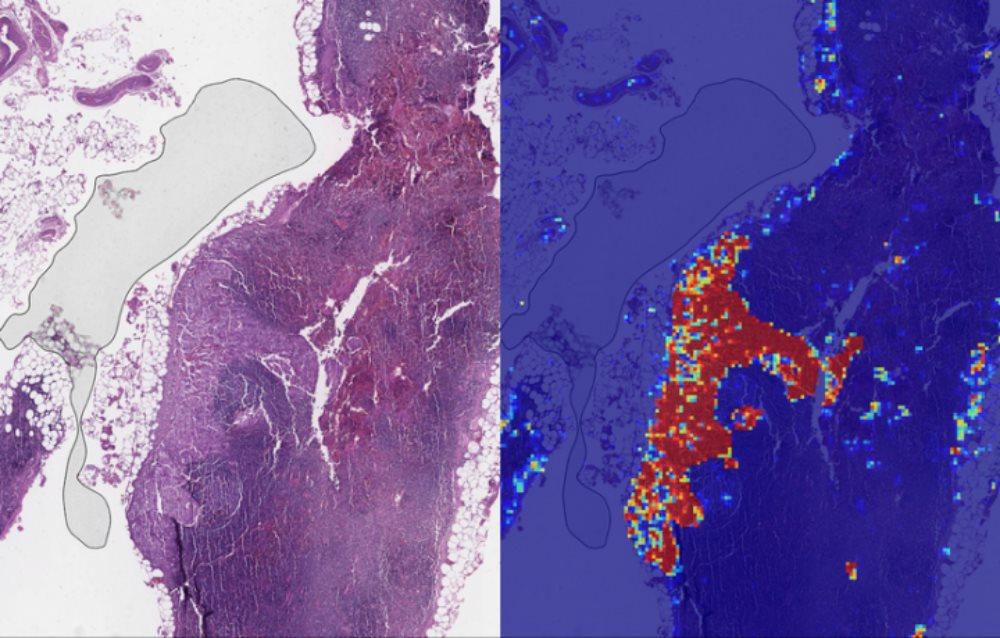 Nghiên cứu hữu ích: Phát hiện ung thư vú nhanh nhờ công nghệ AI của Google