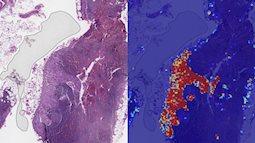 Phát hiện hữu ích: phát hiện ung thư vú nhanh nhờ công nghệ AI của Google