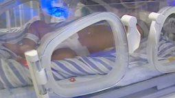 Mẹ dùng kim châm liên tiếp quanh rốn bé mới sinh để dỗ con nín khóc vì nghe theo mẹo dân gian