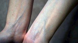 Lắng nghe sức khỏe của cơ thể từ việc nổi gân xanh ở tay chân