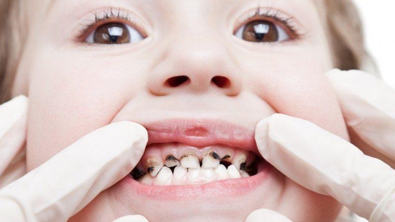 Đừng bỏ qua những bài thuốc chữa sâu răng tại nhà sau đây