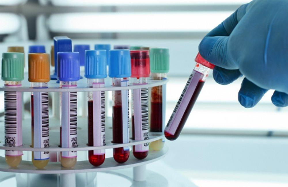Xét nghiệm máu xác định tuổi thọ, phát hiện quá hữu ích