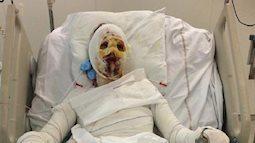 Một người phụ nữ bị bỏng tới 90% sau khi uống kháng sinh chữa viêm amidan