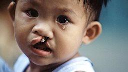 """"""" Vạch mặt"""" nguyên nhân khiến con sinh ra bị sứt môi – hở hàm ếch"""