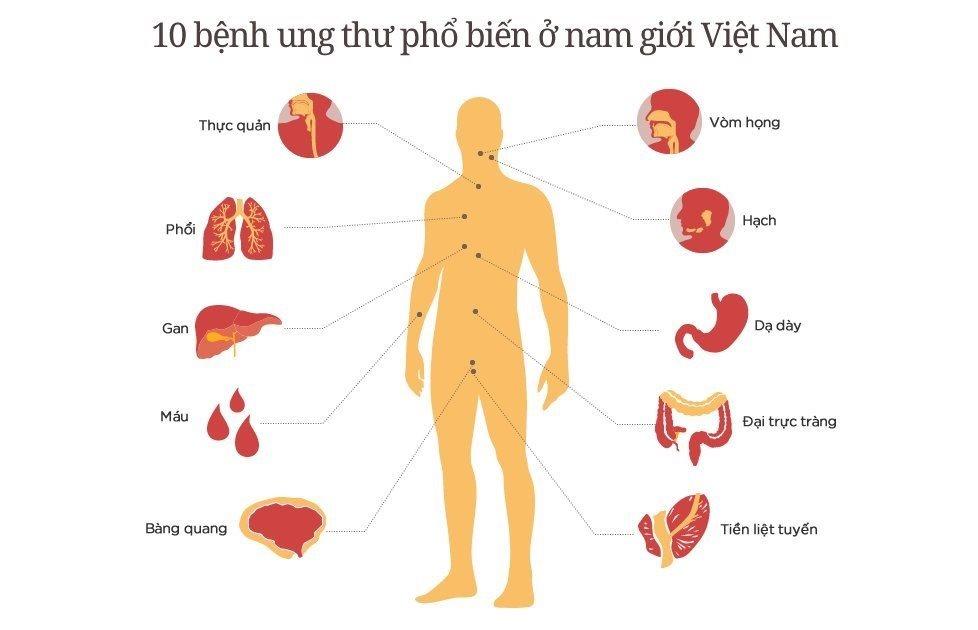 Giật mình trước những con số không thể ngờ tới liên quan đến bệnh ung thư ở Việt Nam