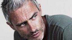 Giải mã hiện tượng tuổi xanh mà tóc đã bạc ở người trẻ